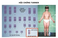 thong-tin-co-ban-ve-hoi-chung-turner